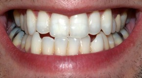 Baking Soda Makes a Good Cheap Teeth Whitener