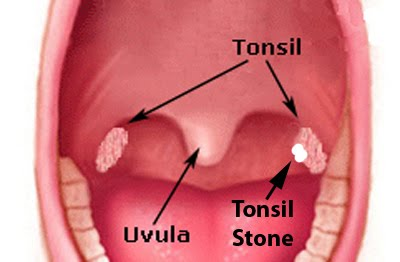 In the Back of My Throat Tonsil Stones
