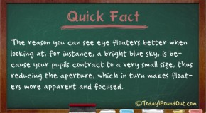 Why You Can See Eye Floaters Better When Looking at the Sky