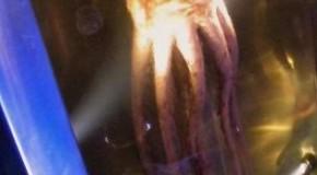 The Colossal Squid Has a Doughnut Shaped Brain With Their Esophagus Running Through the Hole