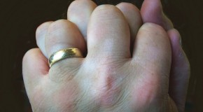 Cracking Your Knuckles Does Not Cause Arthritis