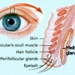 meibomian-glands-e1298542282825