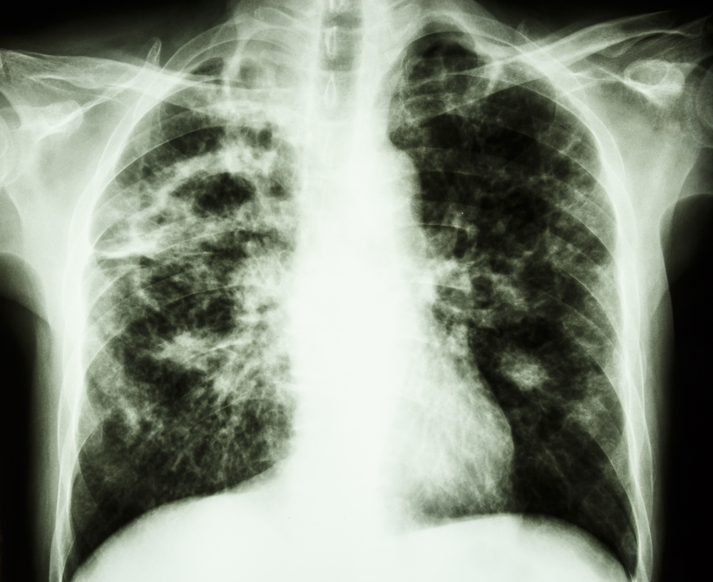 "Why Tuberculosis Was Called ""Consumption"""