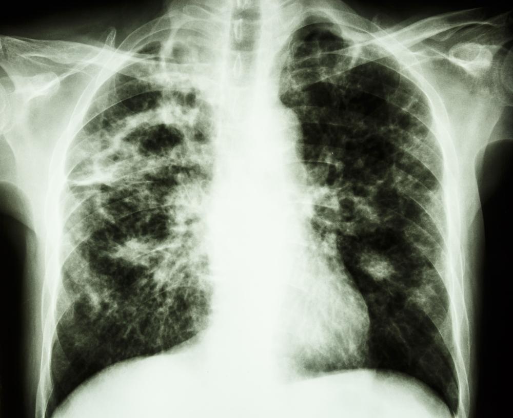 Tuberculosis - Disfrasandose EP
