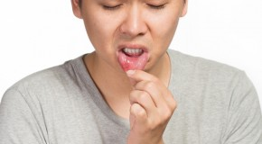 What Causes Canker Sores?