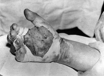 Daghlian's Hand August 21, 1945