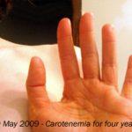 Carotenemia-340x280