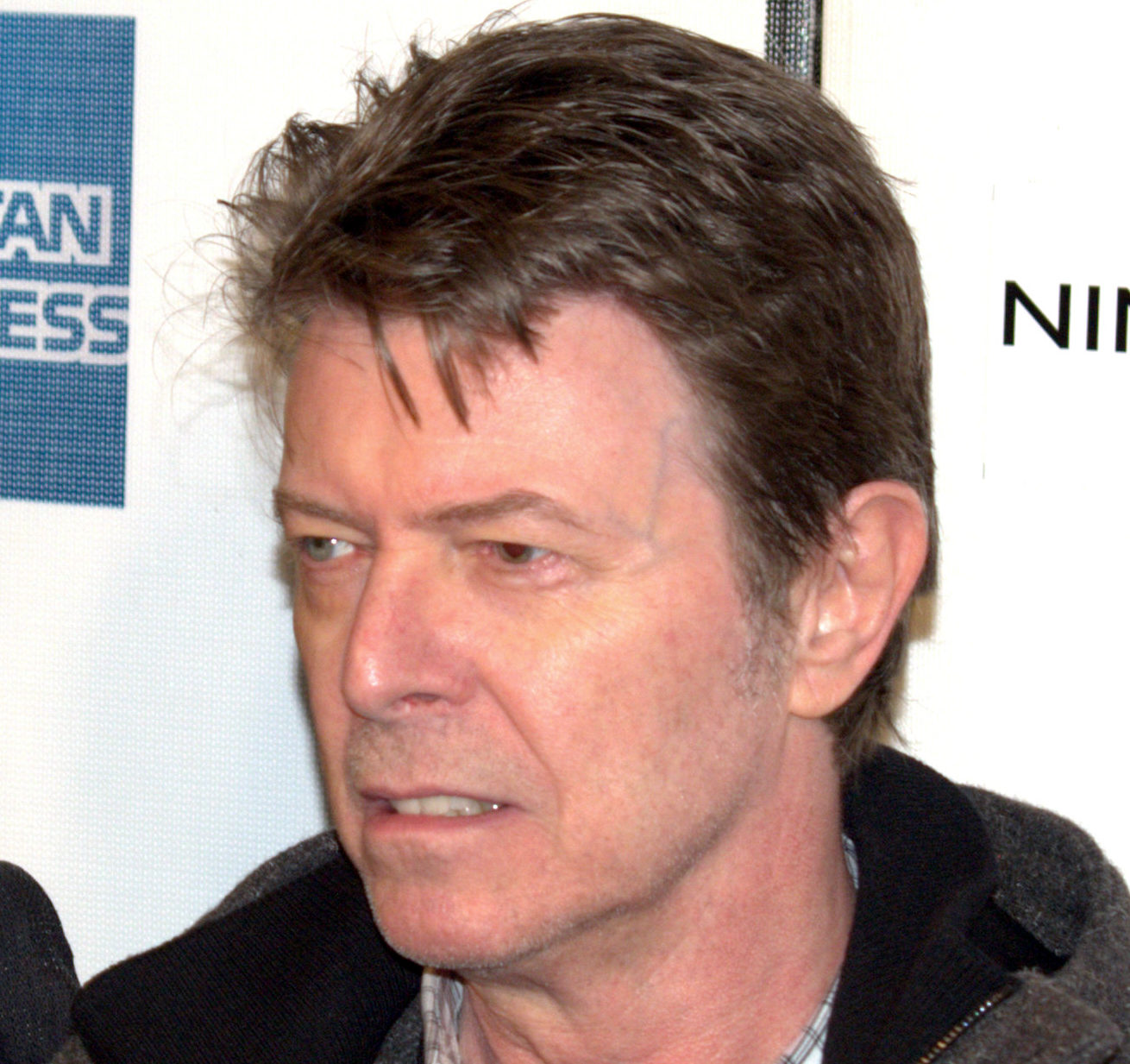 What Was Up With David Bowies Left Eye