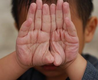 Wrinkled Fingers