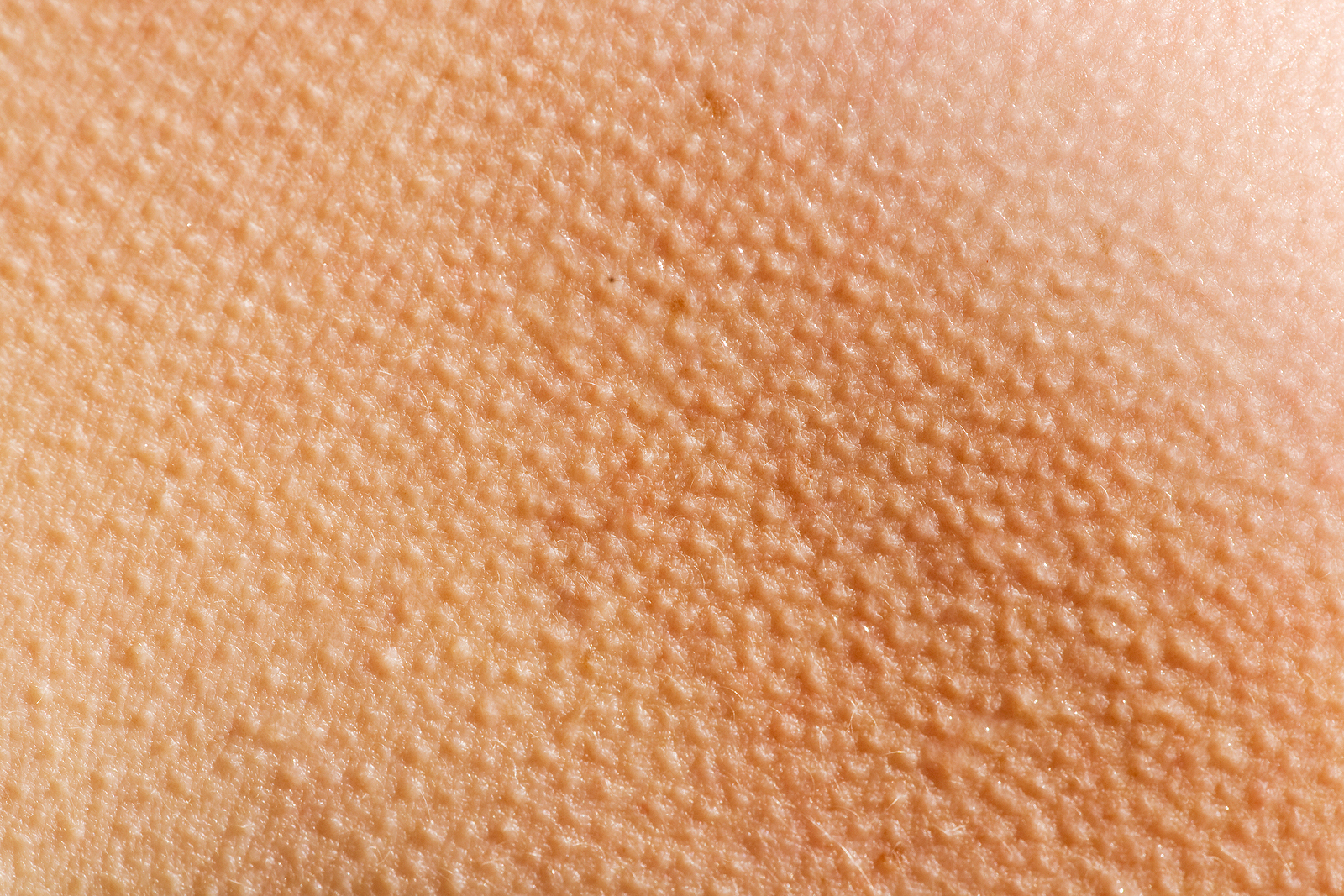 What Are Goose Bumps?